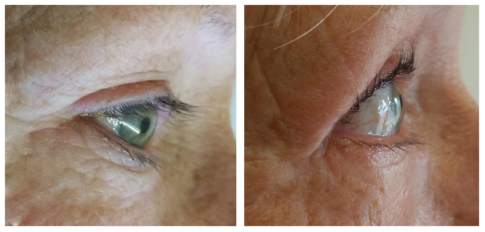 susanne-lash-Lift-before-and-after
